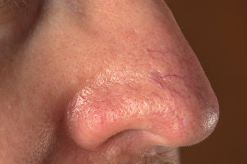 the surface of the skin with rosacea and eczema