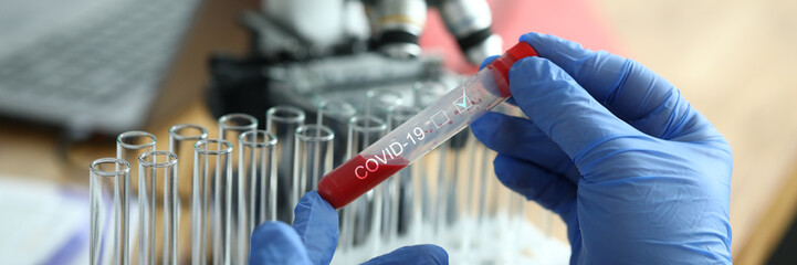 Male chemist hand in blue protective gloves hold test tube closeup background