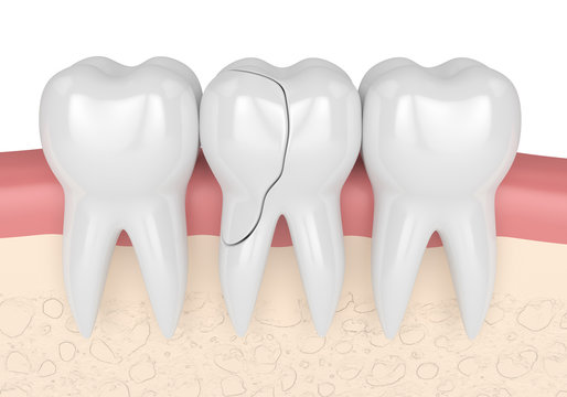 3d render of gums with cracked tooth