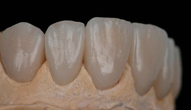Dental Laminate veneers, smile design.