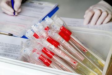 Abstriche, Coronavirus Test, Drive-In bei Nürtingen