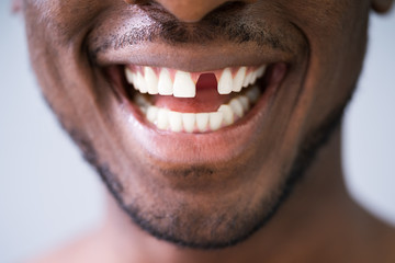 Photo Of Young Man With Missing Tooth