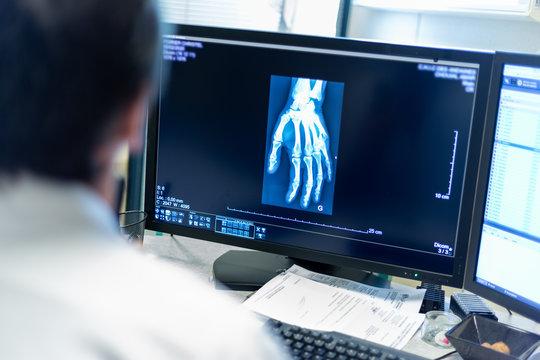 Radiographie de la main médecin radiologue diagnostic examen imagerie médicale
