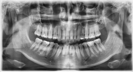 치아 치과 엑스레이 사진
