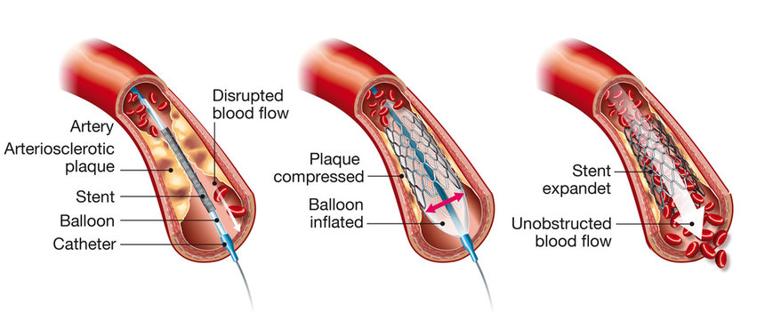 Arteriosclerosis, balloon angioplasty and stent insertion, medical illustration, labeled