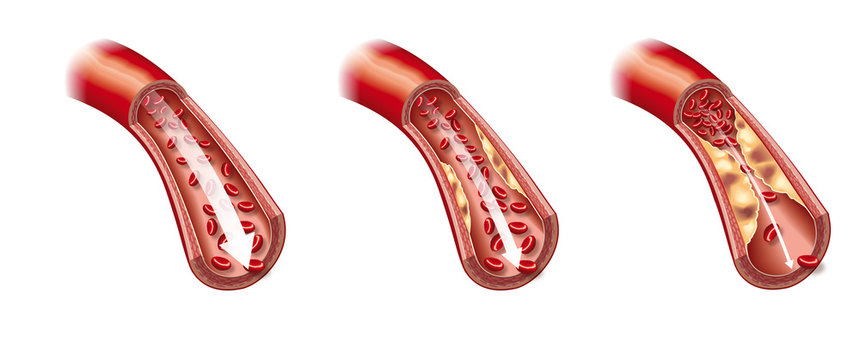 Arteriosclerosis, illustration showing healthy blood vessel and beginning of arteriosclerosis