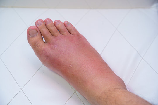 Close up old man right foot, Ankle wounded waiting and swelling infectious disease by bee sting allergic reactions nurse treatment on wound dressing a bloody and brine of patient on white background.
