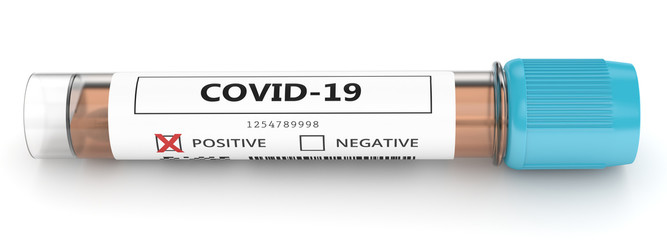 3d render of covid-19 positive nasal swab laboratory test