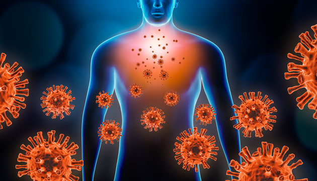 Viral pneumopathy 3d rendering illustration with red virus cells and human body. Coronavirus, covid 19, infectious and inflammatory respiratory disease as pneumonia or bronchitis concepts.