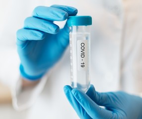 Female Scientist Medical Research Lab researching test tubes virus covid -19 coronavirus in laboratory