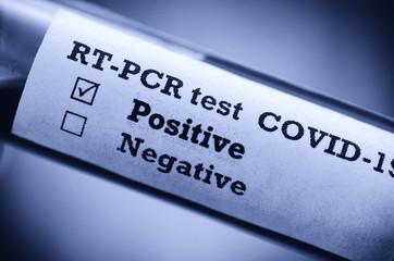 Stock photo of tube with Positive Blood Test(novel Coronavirus 2019 disease,COVID-19,nCoV)