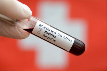 Stock photo of holding tube with Blood Test(novel Coronavirus 2019 disease,COVID-19,nCoV) and Flag of Switzerland. Switzerland virus outbreak.