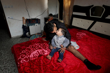 Palestinian man Mohannad Al-Aswad, who lost a leg during a protest at the Israel-Gaza border, kisses his son in his house in Gaza City
