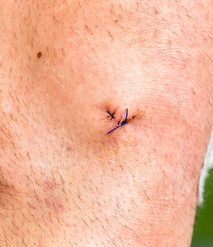 Close up of wound with stitches after knee arthroscopy.