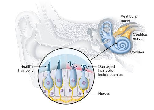 Tinnitus, healthy and damaged hair cells inside cochlea, medical illustration