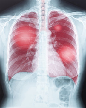 COVID-19, Coronavirus disease or tuberculosis infection on lung chest X-ray radiography imaging film displaying respiration illness of woman patient's health in medical diagnostic analysis