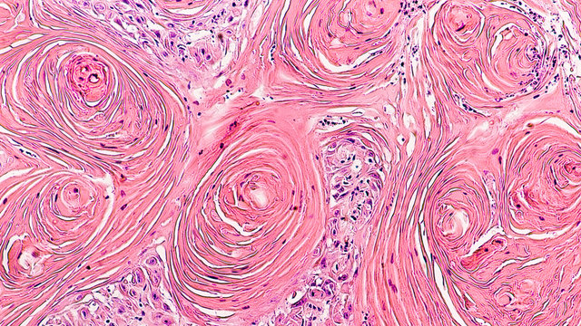Microscopic image of skin biopsy of invasive squamous cell carcinoma, well differentiated, with prominent squamous pearls.  Regular use of sunscreen can be preventative.