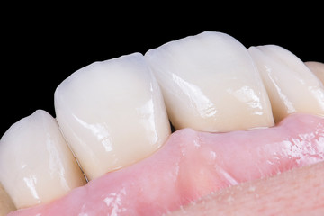 zirconium artificial teeth