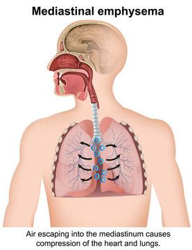 mediastinal emphysema medical vector illustration isolated on white background