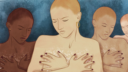 Women with Breast Cancer Deciding on Mastectomy