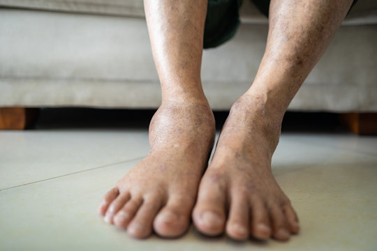 Asian senior woman is show her swollen feet or legs in the area of astragalus,elderly patient with astragalus swelling,ankle bone pain,tendinitis,chronic bursitis,caused by the accident,health care