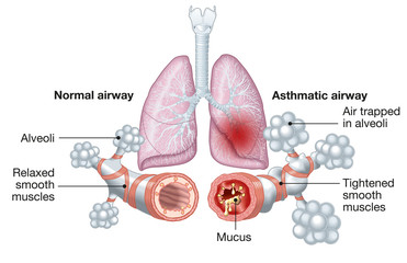 Asthma, normal and asthmatic airways, medically illustration