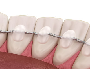 Retainers dental installed after braces treatment, Medically accurate dental 3D illustration