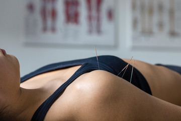 Female client lying on acupuncture treatment bed