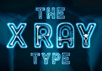 X-Ray Type Icon Set