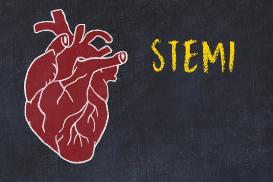 Concept of learning cardiovascular system. Chalk drawing of human heart and inscription STEMI