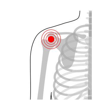 Human shoulder joint pain anatomy.