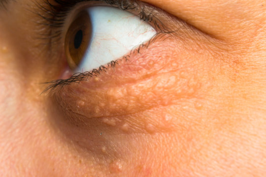 close-up photo of a women face with fat points near eye