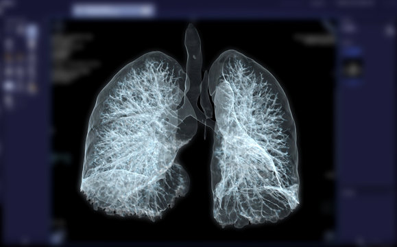 CT Chest or Lung 3D rendering image for diagnosis TB,tuberculosis and covid-19 .