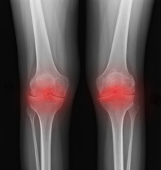 Real skeleton x-ray of woman knee suffering from rheumatism. Rheumatoid arthritis knee pain medical concept, medical diagnostics, traumatology and orthopedics