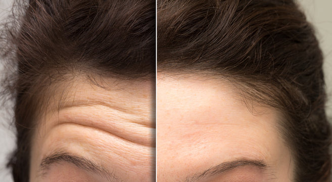 face of a woman before and after a botox treatment to smooth expression lines. Concept of anti-aging and rejuvenation cosmetics on forehead wrinkles