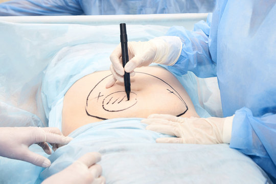 Surgery room. Belly surgery. Doctor mark liposuction area at tummy. Drawing at skin. Anti cellulite equipment. Copy space. Light blue color. Fat abdomen. Hostipal doctor hands
