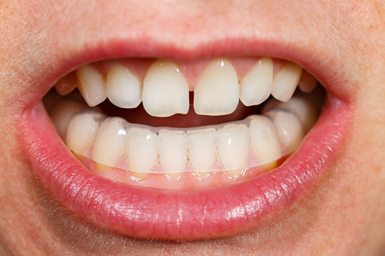Placing a bite plate in mouth to protect teeth at night from grinding