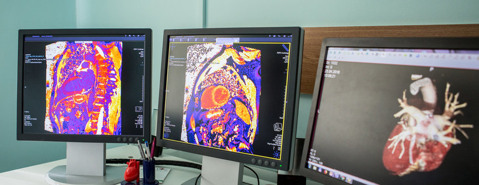 MRI CT Scanned image show on computer in DataCenter operation room.