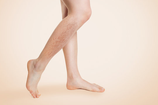 Smooth female legs, with varicose veins and swelling on the lower leg. Beige background. Copy space.The concept of varicose disease