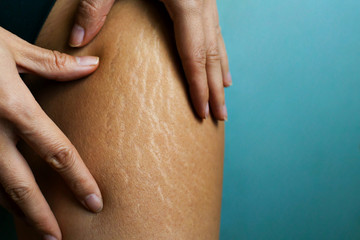Stretch Marks On Woman's Legs. Female Hand Holds Fat Cellulite And Stretch Mark On Leg. Cellulite.