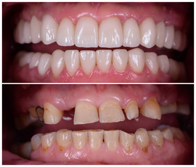 full mought recovery by press ceramic crowns and implants