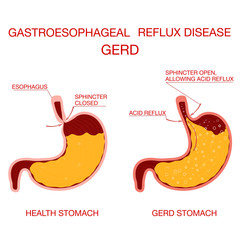 Heartburn and Gastroesophageal Reflux Disease GERD. Stomach acid moving up into the esophagus causing acid reflux symptoms. Heartburn gastric infographic...