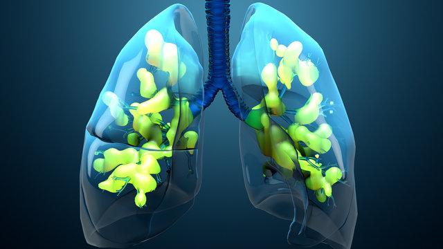 Damage lungs, severe respiratory illness, pneumonia, ARDS, acute respiratory distress syndrome caused by the coronavirus