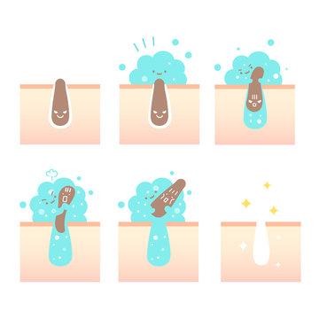 毛穴の汚れ(角栓)を筋肉もりもりなクレイジング泡がすっきりとりのぞいて綺麗になった肌のイラスト(擬人化)