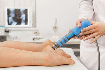 Extracorporeal Shockwave Therapy ESWT.Effective non-surgical treatment.Physical therapy for plantarfascitis with shock waves.Pain relief, normalization and regeneration,stimulation of healing process.