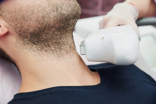 hair removal using a laser device. the nozzle of the device near the man's chin