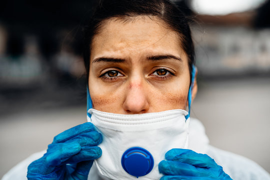 Exhausted doctor/nurse wearing coronavirus protective gear N95 mask uniform.Coronavirus Covid-19 outbreak.Mental stress of frontline worker.Face scars.Mask shortage.Overworked healthcare professional