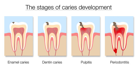 Caries stages chart, development of tooth decay with enamel and dentin caries, pulpitis and periodontitis. Isolated vector illustration on white background.