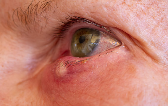 Stye or hordeolum and blepharitis in right lower eyelid of a woman. It is a bacterial infection of an oil gland.
