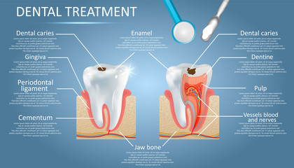 Dental treatment vector diagram, education poster template, medical anatomy infographics. Tooth structure and tooth decay caries disease development. Dentistry, dental restoration concept.